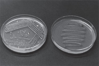 Plate streaking. (a) Notice how the proper technique is designed to yield isolated colonies in areas D and E. (b) Poorstreaking does not provide separation of colonies.