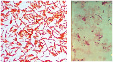 Gram-negative bacilli (Klebsiella pneumoniae) in a Gramstained smear from an agar colony (left) and a patient's blood culture (right). In the blood specimen, the organisms are pleomorphic, varying in length from coccobacillary to filamentous.