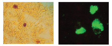 Inclusions of Chlamydia trachomatis in cell culture. The glycogen-containing inclusions stain dark brown when the cells are treated with an iodine solution (left).