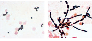 Gram stain of Candida albicans cells isolated from the blood culture of a patient. At left the yeast cells are budding, and at right, they have formed long, filamentous, irregularly staining hyphae.