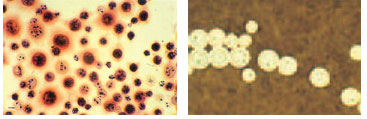 Cryptococcus neoformans in cerebrospinal fluid from a patient with AIDS. In the Gram stain at left, yeast cells are seen to stain irregularly. The orange-staining halo around some cells is the Cryptococcus capsule. In the India ink preparation at right, the cryptococcal yeast cells are surrounded by a capsule that is demarcated by the suspension of charcoal particles in the India ink.