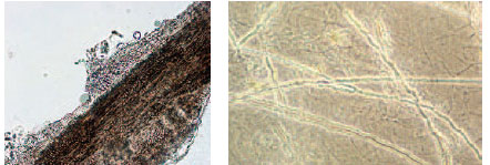KOH preparations of a hair and skin scales from patients with tinea capitis (ringworm of the hair) and tinea corporis (ringworm of the body). On the left, many round, reproductive spores of the dermatophyte fungus are seen surrounding the hair; the filamentous hyphae invade the hair shaft. On the right, the filamentous hyphae are seen invading skin scales throughout the preparation.