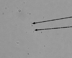 Germ-tube formation by Candida albicans. The two yeast cells in the center have sprouted a germ tube (arrows) when incubated for 2 hours in horse serum. Not all cells in the preparation will form the germ tube. The halo around the cells represents light refraction and not a capsule.