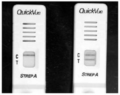 "An enzyme immunoassay kit for ""strep"" throat. The left side illustrates a negative test, with only the control (C) line positive. On the right, both the control (C) and patient specimen (T) are positive as illustrated by the appearance of two lines."